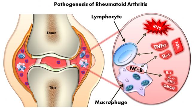 tratamente medicale artrita