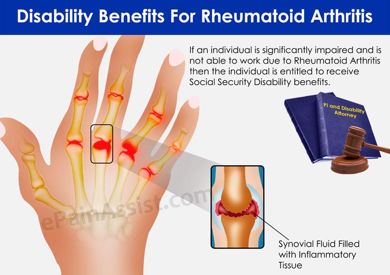 Artrite remedii