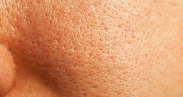 Porii pielii