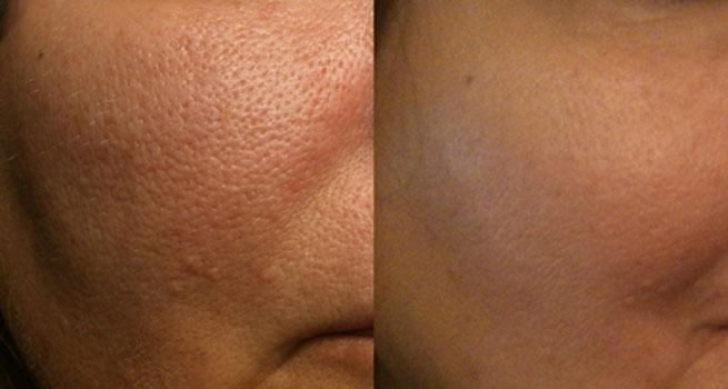 Tratament pori piele