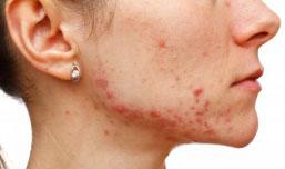 Dieta anti acnee