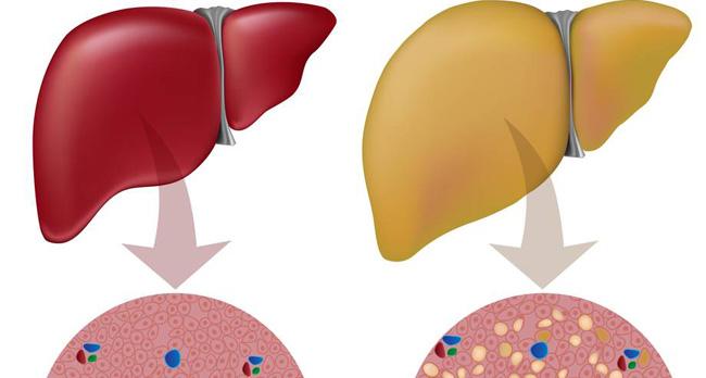 Remedii pentru steatoza hepatică
