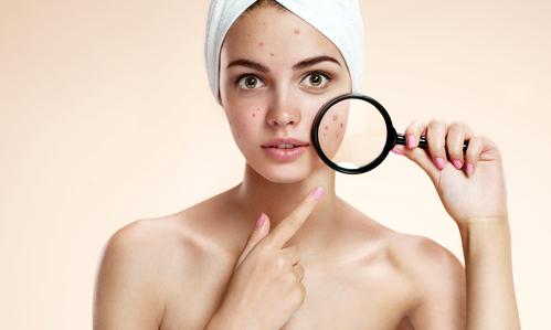 Cauze acnee cosuri