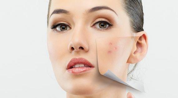Tratamente acnee naturiste