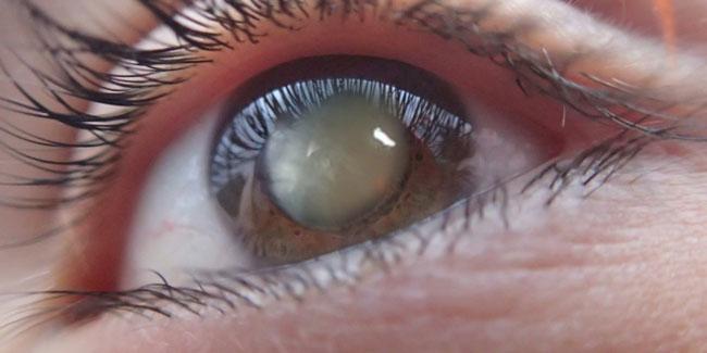 Tratament cataractă cu picături