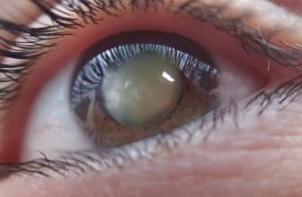 Tratament cataractă cu picături?