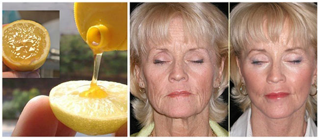 Intinereste tenul cu 10 ani cu miere si lamaie