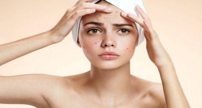 Tratarea si prevenirea acneei